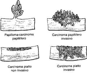 papilloma invertito vescica